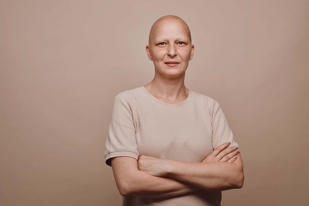 From Bald to Beautiful